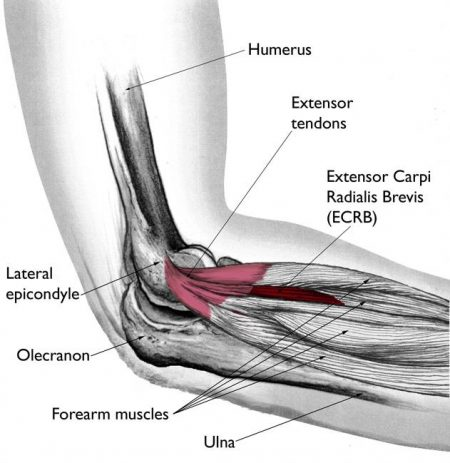 lateral epicondylit